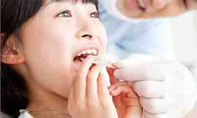 歯並びをきれいにしたい