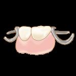 歯を失ったら?
